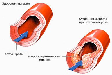 Атеросклероз - старение сердца и сосудов