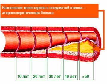 Лекарственные средства понижающее холестерин