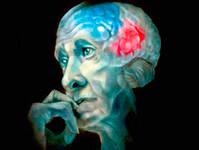 Старение мозга - одна из причин старения