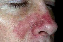Пример неправильной работы иммунитета – аллергическая реакция.