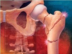 Остеопороз костей (хрупкость, переломы, смерть - частая проблема женщин после 40)