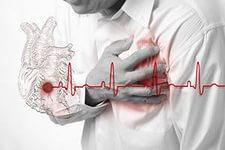 Инфаркт сердца