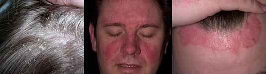 Стареющий иммунитет порождает перхоть и себорею