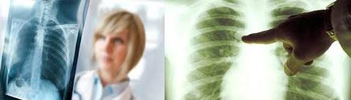 Безопасные и дешёвые средства лечения немелкоклеточного рака лёгких