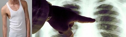 Слишком худые мужчины чаще болеют и рано умирают от рака лёгких