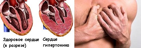 Поражение сердца в результате гипертонической болезни (высокое артериальное давление)