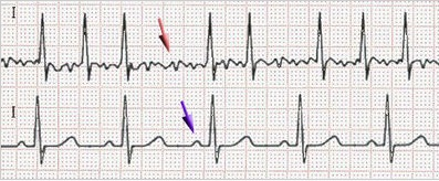 мерцательная аритмия сердца на ЭКГ