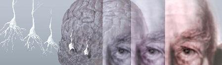 Болезнь Альцгеймера симптомы и признаки, профилактика, лечение