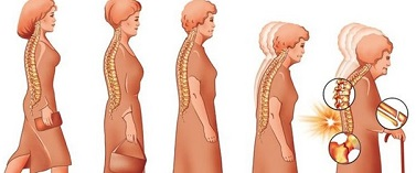Растворимый цикорий предупреждает остеопороз костей