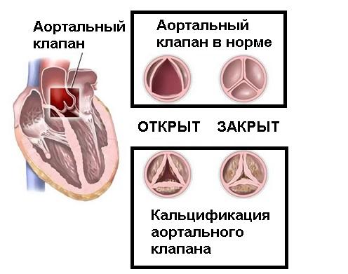 Витамина К2 (МК-7) предупреждает кальцификацию коронарных артерий